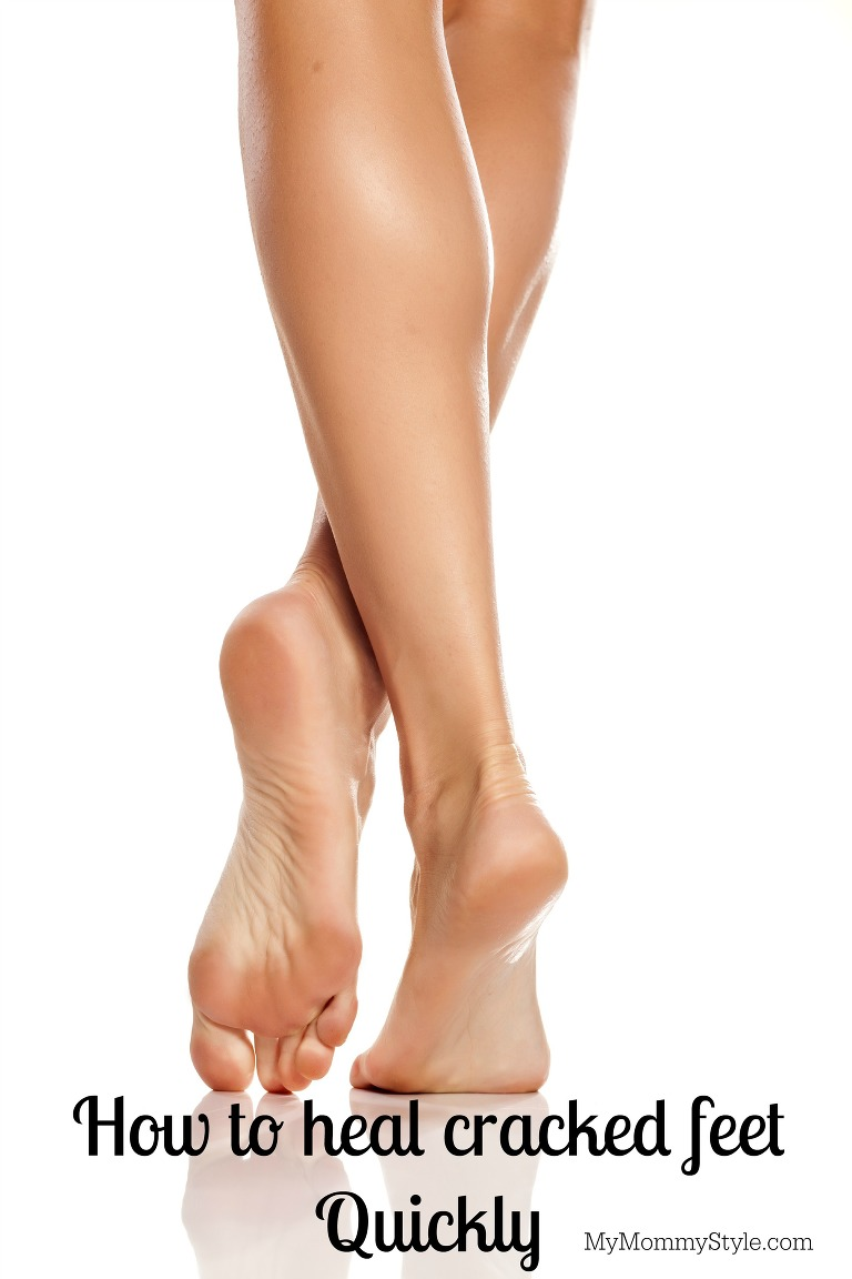 Bare legs crossed with bare feet emphasizing healthy heels showing how to heal deep cracked heels.